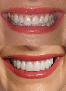 Veneers,Clip in Veneers,Clip on veneers