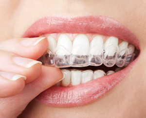 Invisalign, teeth alignment in Kirkland, WA