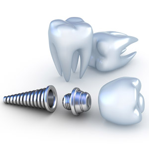 dental implant Kirkland, WA