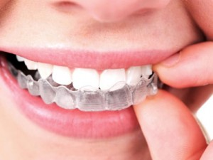 How to Care for Your Teeth with Invisalign