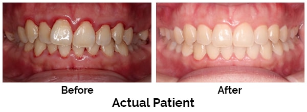 Kirkland Teeth Before and After Invisalign